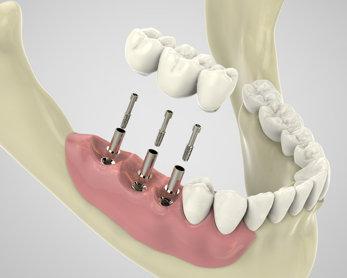 3D rendering implantat, dental implant