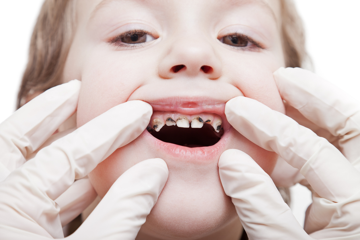 Dental medicine and healthcare - child patient open mouth showing caries teeth decay