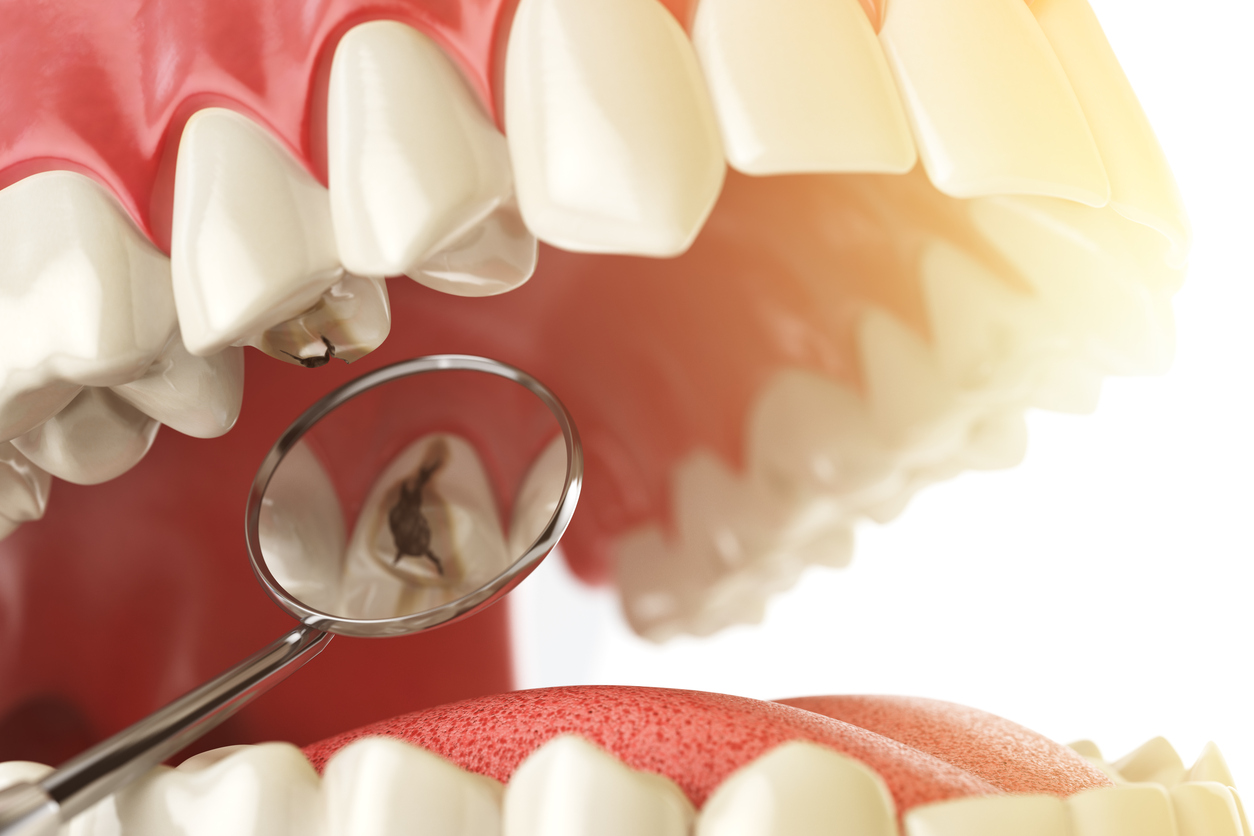 How to Clean Dentures and Avoid Bacteria