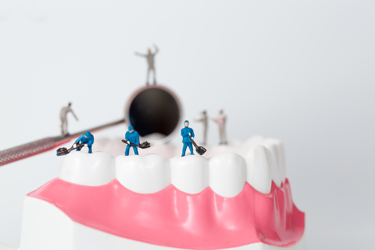 What are your options for teeth fillings?