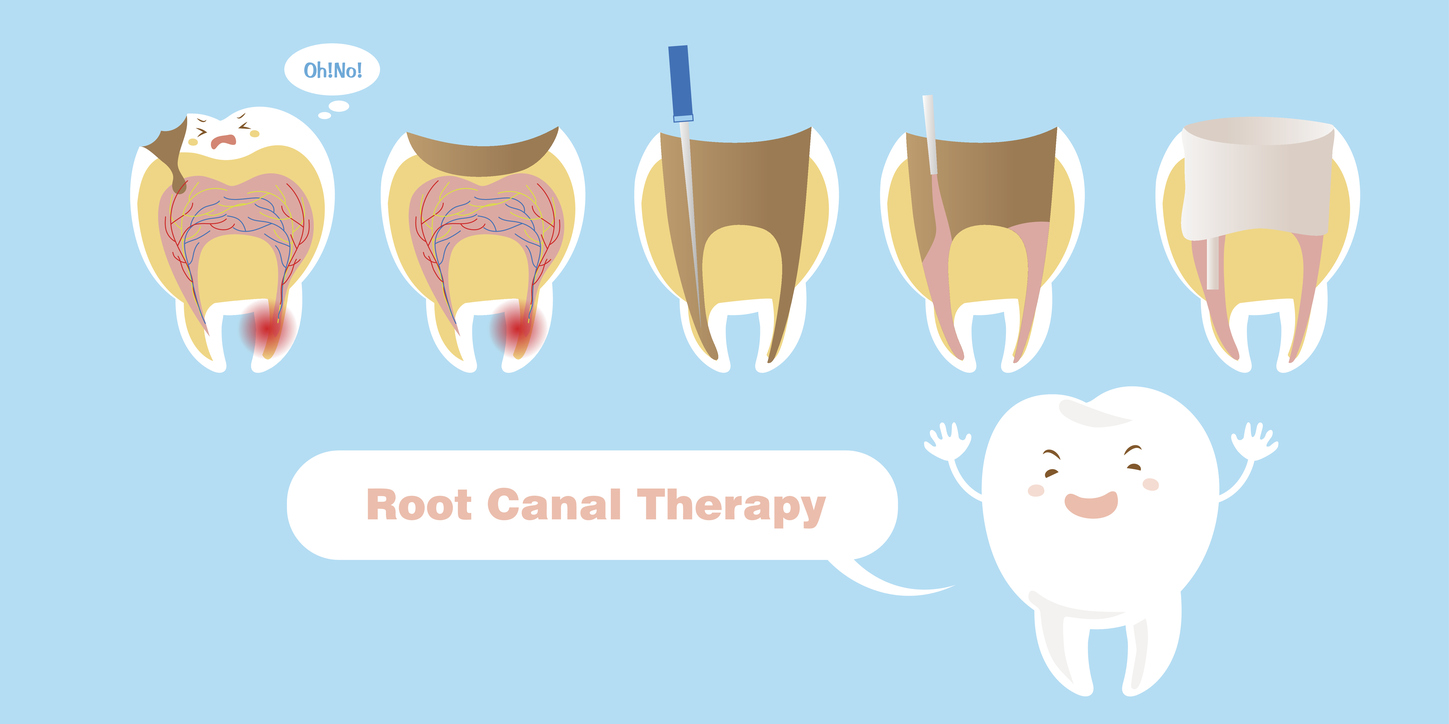 tooth with root canal therapy