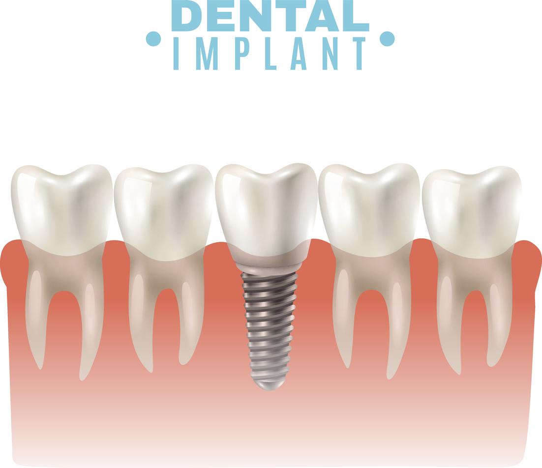 Dental Implant Model Side View Poster