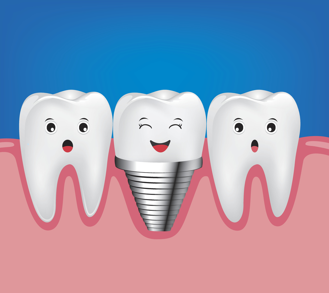 Dental implant and normal tooth beautiful bright.