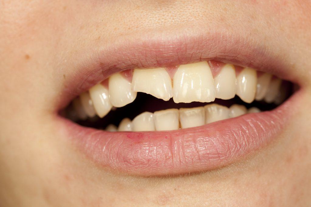 К чему снится, если зуб сломали в драке?